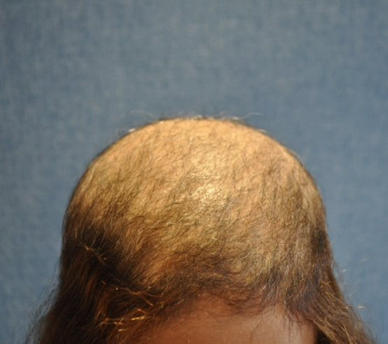 Medical Hair Restoration Before1