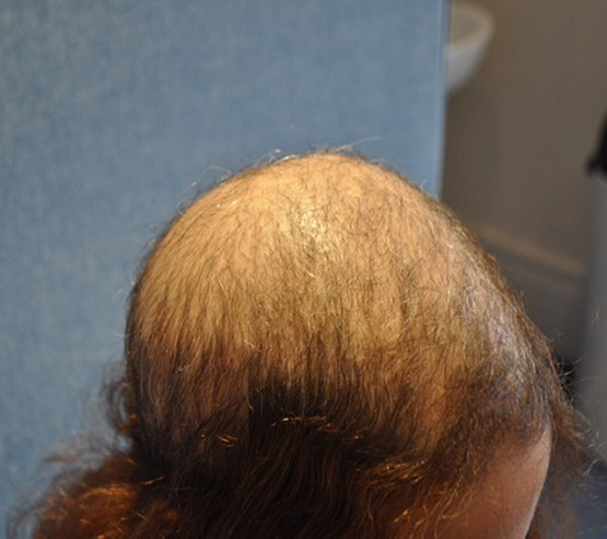 Medical Hair Restoration Before2