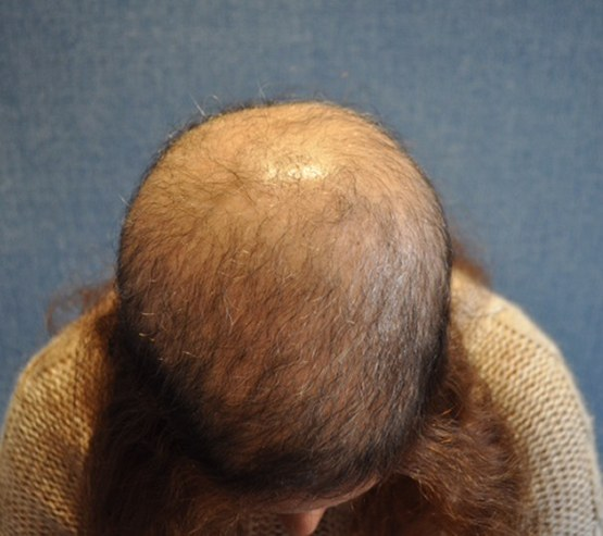 Medical Hair Restoration Before4