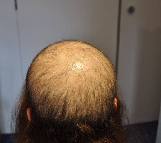 Medical Hair Restoration Before5