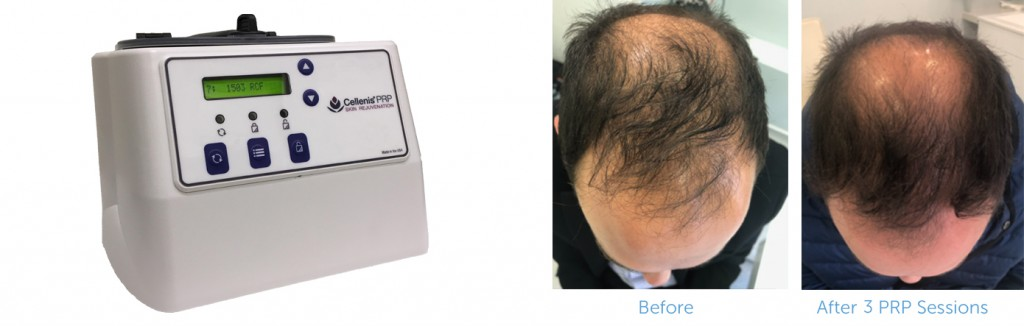 Prp Before And After 2
