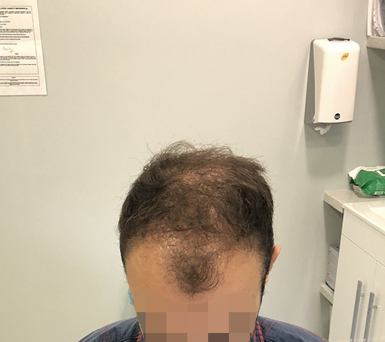 2000 grafts 6 months before hair transplant surgery