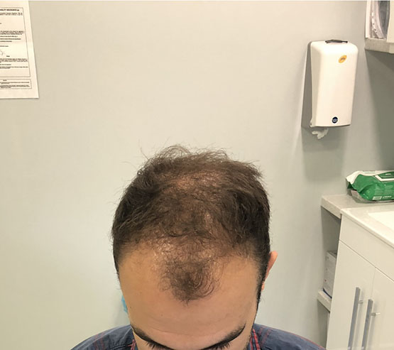 2000fue Before 6months hair transplant surgery