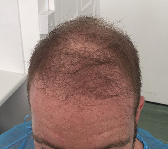 2300grafts Fue Before hair transplant surgery