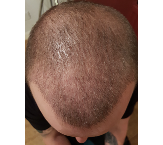 3 And A Half Months Fue Mobile After hair transplant surgery