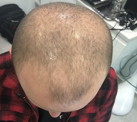 3 And A Half Months Fue Mobile Before hair transplant surgery