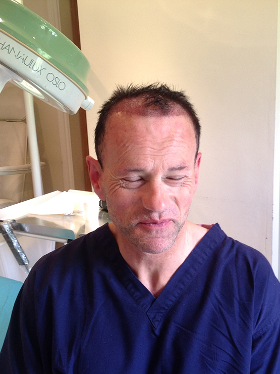 Jeremy Post Op1 hair transplant surgery