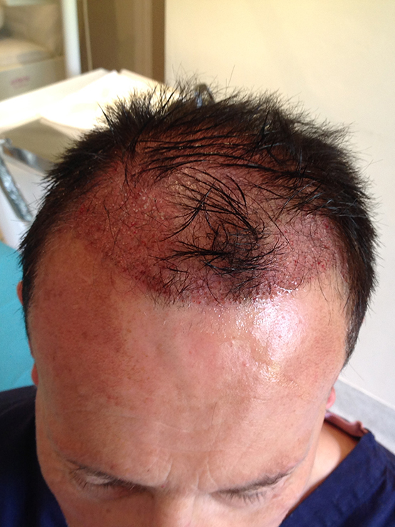 Jeremy Post Op2 hair transplant surgery