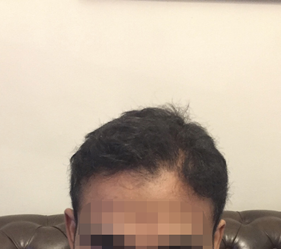 Patient1 After hair transplant surgery