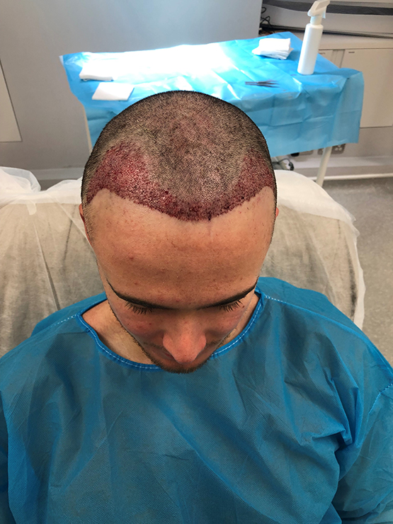 Patient1 After Op2 After FUE surgery 1858 grafts