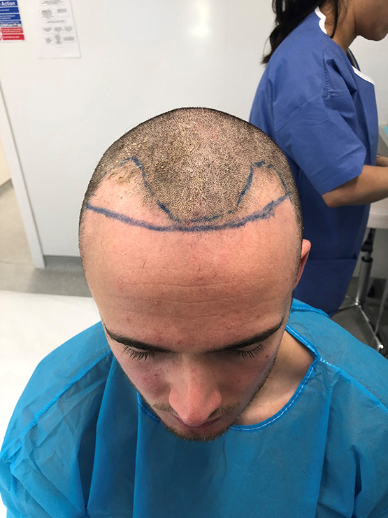 Patient1 Pre Op4 After FUE surgery 1858 grafts