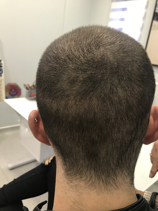 Patient1 Two Weeks After1 hair transplant surgery