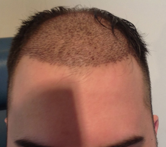 Patient3 After hair transplant surgery