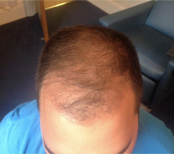 Patient3 Before hair transplant surgery