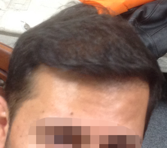 2300 Grafts Mobile After hair transplant surgery