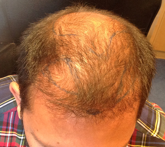 2300 Grafts Mobile Before hair transplant surgery