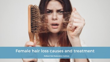 Female hair loss causes and treatment