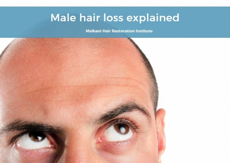 Male hair loss explained