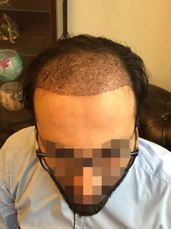 FUE surgery 1600 grafts Hair Transplant