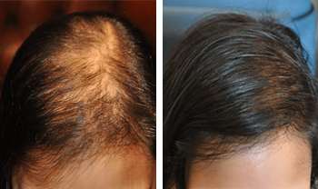 Before And After Male And Female Hair Loss