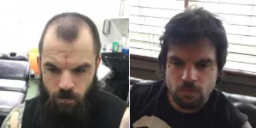 Chris before and after FUE hair transplant surgery