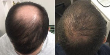Before and after 2000 grafts FUE crown hair transplant surgery