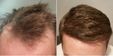 Before and after 2000 grafts FUE hair transplant surgery